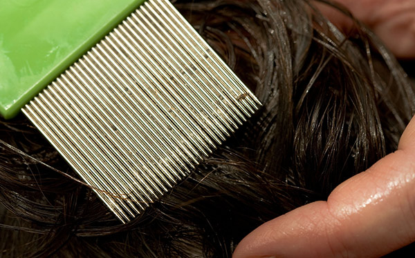 Which Reveals Head Lice Treatments That Work September
