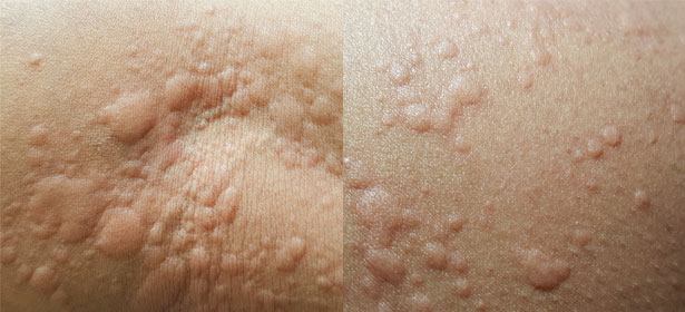 What Rash Is This? - Which?